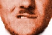 La paralisi del nervo facciale