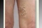 Quando le vene delle gambe danno fastidio