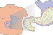 Gastrite, ulcera e reflusso gastro esofageo