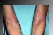 Quando la pelle si sfoga